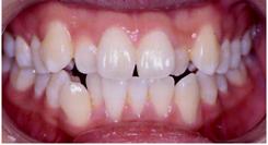 crowded-teeth