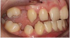 missing-teeth