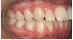 protruding-teeth